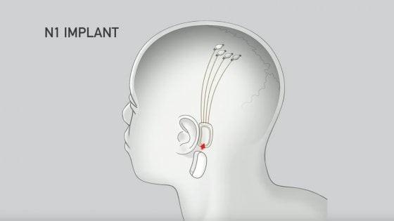 neuralink collegamento uomo macchina